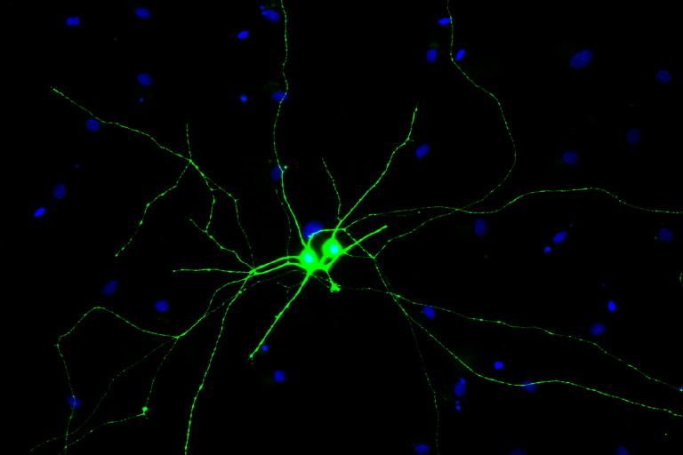 Examples of retinal ganglion cells (green) derived from human pluripotent stem cells