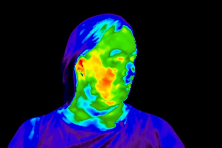 Thermography image shows temperature differences on a woman's face during a hot flash.