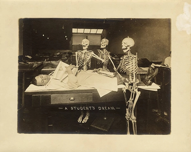 three skeletons are placed around a person laying down on a bed posing